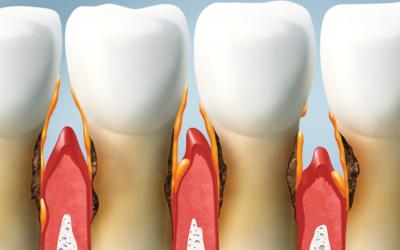¿Qué es una periodoncia?