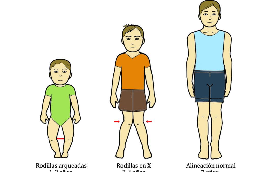Separación anormal de las piernas en niños