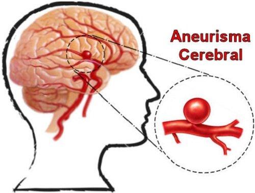 El aneurisma