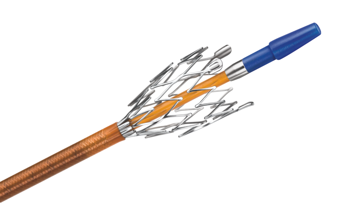 Implante de stent periférico: solución para la falta de riego sanguíneo