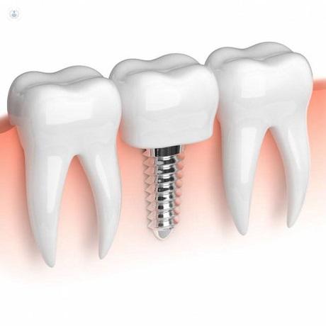 Mini implantes dentales: ventajas y desventajas