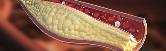 Controlar la hipercolesterolemia, básico para una buena salud
