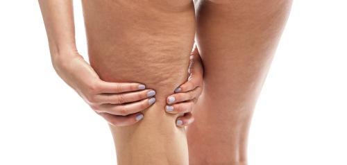 Diferentes cirugías para eliminar la Celulitis: