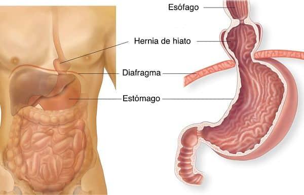 Hernia de hiato: