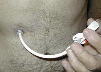 La Gastrostomía Endoscópica: