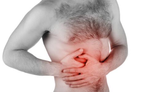 ¿Qué es una peritonitis?