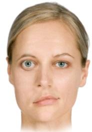 Parálisis facial: