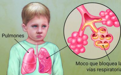 ¿Qué es y a quiénes afecta la fibrosis quística?